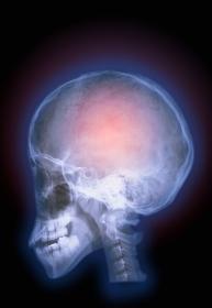 脳のレントゲン写真