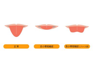 舌小帯のイラスト 口のみ