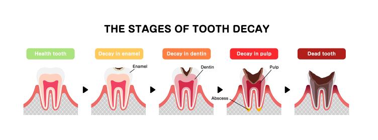 虫歯の進行と症状 イラスト