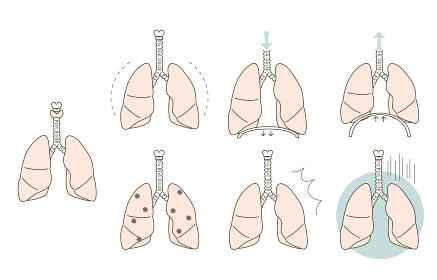 肺の状態 健康、症状のバリエーション
