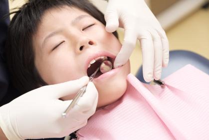 歯科検診を受ける子供:鏡を口に入れる