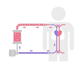 ECMO (エクモ) ・体外式膜型人工肺 の構造と仕組み /新型コロナウイルス, Covid-19