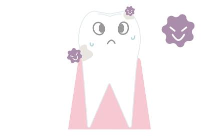 虫歯の初期段階、表面が白濁化