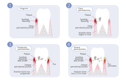 歯周病の進行イラスト、4段階