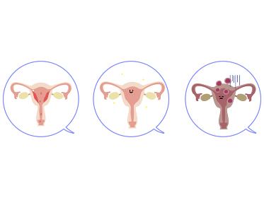 子宮 の画像 写真素材 ベクター画像 イメージマート