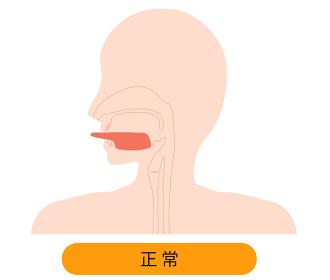 舌小帯が切れている自由な舌のイラスト