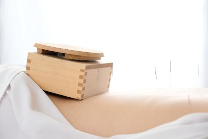 明るい鍼灸院で女性の腰に乗せられた箱灸