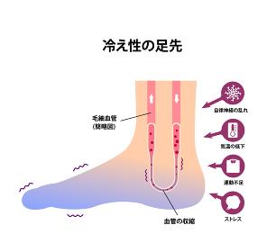 末端冷え性の足 イラスト (冷え性の原因)