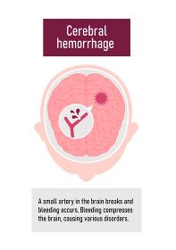 脳出血の原因と症状 図解ベクターイラスト