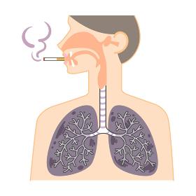 鼻・喉・肺の図表(喫煙者の黒くなった肺)