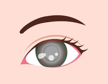 目・眼の病気 ベクターイラスト (緑内障)