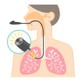 気管支鏡検査のイラスト(図表・説明図・肺カメラ)