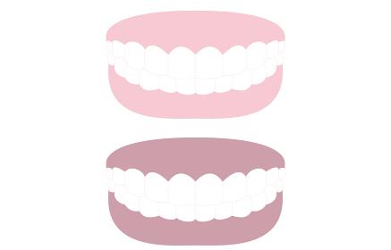 審美歯科、白い歯とピンクの歯茎、白い歯と黒