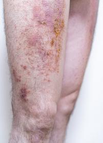 膿の出ている重度の湿疹
