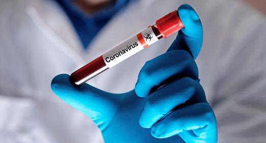 Coronavirus 2019-nCoV Blood Sample.