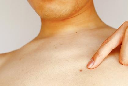 男性の胸元にできたニキビ