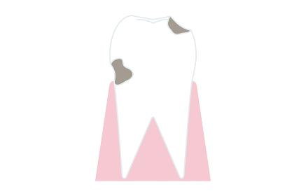 虫歯の進行、虫歯が象牙質に達する