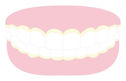 歯垢のべったりついた歯と歯茎のイラスト