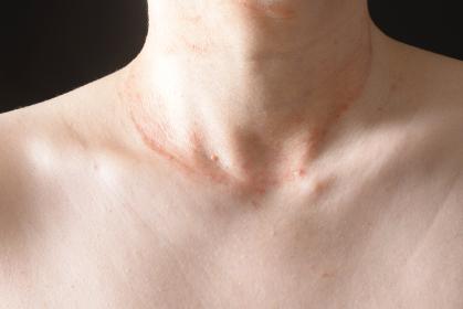 皮膚病の日本人女性