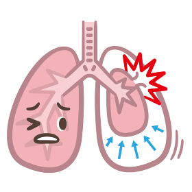 肺気胸 病気
