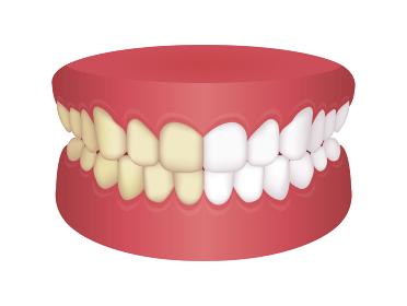 歯のホワイトニング (黄ばんだ歯と白い歯) / ビフォアアフター ベクターイラスト
