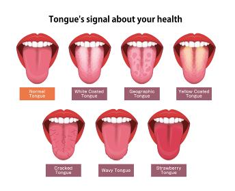 舌(べろ)が表す体の不調シグナル ベクターイラストセット