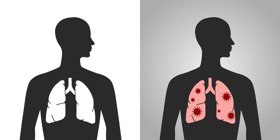 ウイルスと肺の人体図