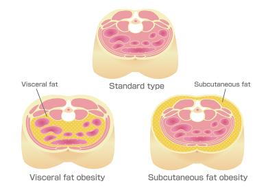 腹部断面図イラスト「肥満のタイプ」/ 標準体型、内臓脂肪、皮下脂肪