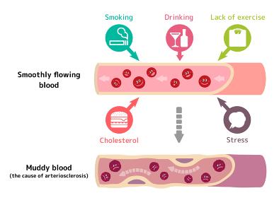 サラサラ血液の健康な血管が不健康要因により、ドロドロ血液になり動脈硬化を引き起こすイラスト(英語)