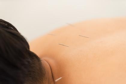 首から肩にかけての鍼治療(男性の背中)
