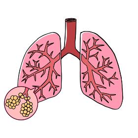肺と肺胞のイメージ