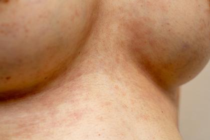 湿疹 女性 バスト