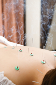 明るい鍼灸院で針を背中に刺される女性