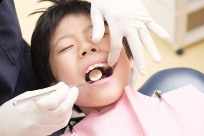歯科検診を受ける子供:上の歯をチェック