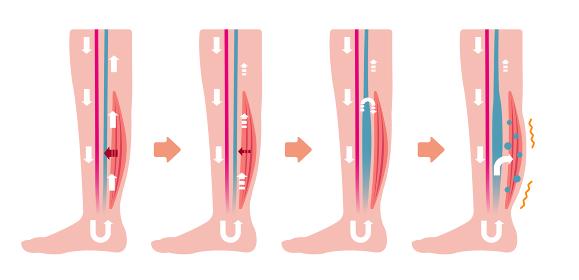 脚のむくみ(浮腫)の発生原因・過程 イラスト