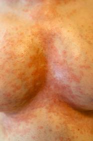湿疹 女性 胸の谷間
