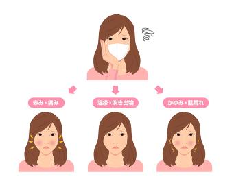 マスク着用による肌トラブルのイラスト / スキンケア (新型コロナウイルス)