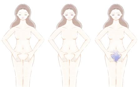 女性の裸体 生理痛 正常な身体と隠れた子宮の病気