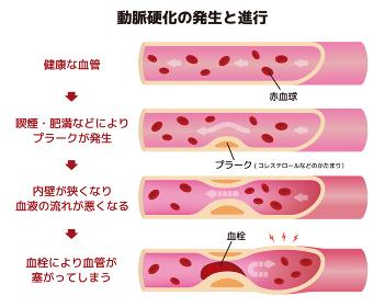 動脈硬化の発生と進行のイラスト
