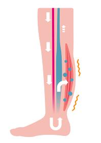 脚のむくみ(浮腫)の発生原因・過程 イラスト/ むくみの発生