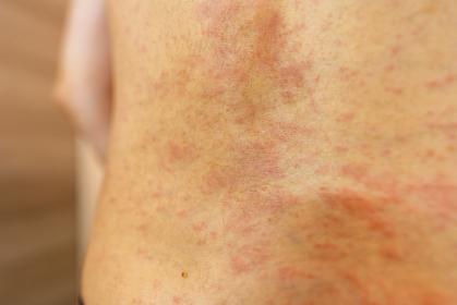 湿疹 女性 腰