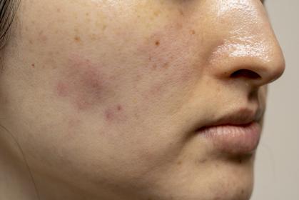 湿疹 女性 顔 肌トラブル