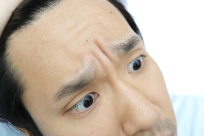 おでこの広い日本人男性