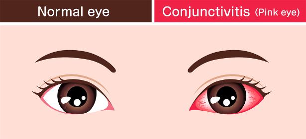 結膜炎と通常の目の比較イラスト(結膜炎の原因)