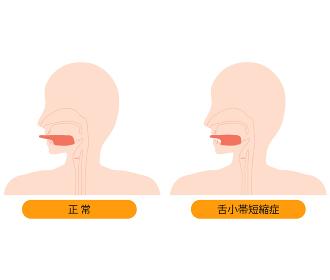 正常な舌と、舌小帯短縮症で伸ばせない舌のイラスト