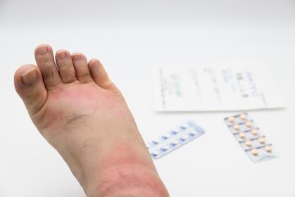 虫に刺されて腫れた足と薬