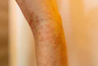 湿疹 女性 肘