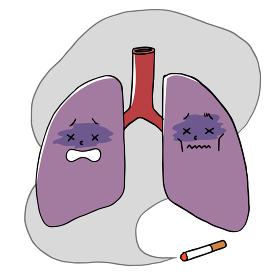 たばこの煙と不健康な肺のキャラクター