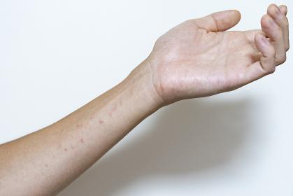 軽度の湿疹
