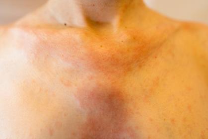 湿疹 女性 デコルテ